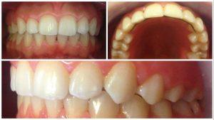 Tratament ortodontic - dupa