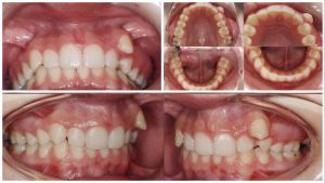 Tratament ortodontic - inainte