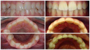tratament aparat dentar rezultate