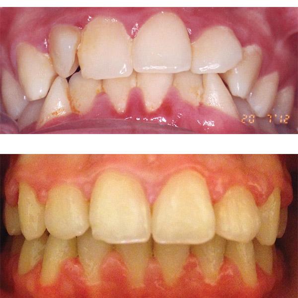 rezultat aparat dentar ceramic