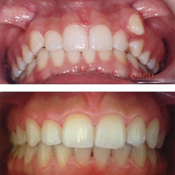 RM - aparat dentar fix
