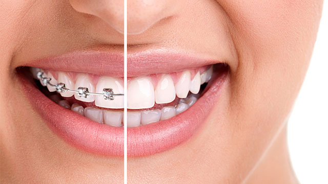 aspect aparat dentar fix