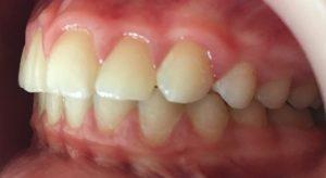 rezultat tratament ortodontic