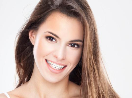 femeie purtand aparat dentar fix