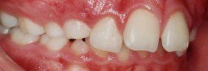 tratament aparat dentar