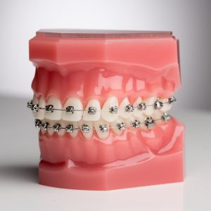 aparat dentar metalic