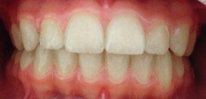 rezultat tratament aparat dentar