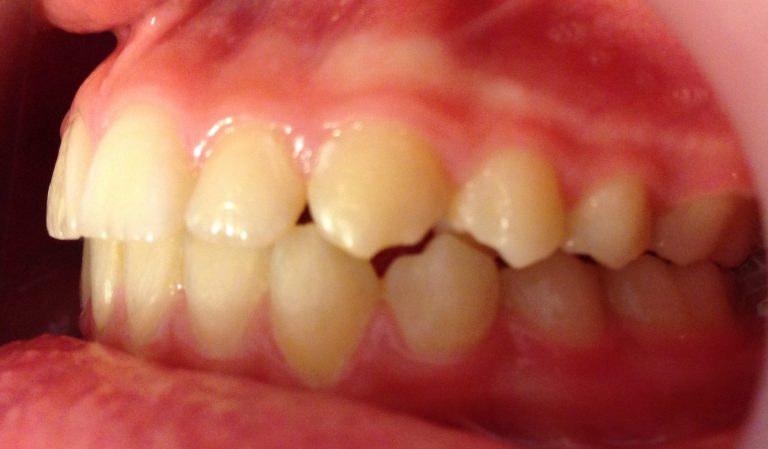 aparat dentar fix ortoclass -rezultate