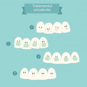 avantaje aparat dentar