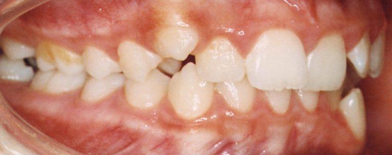 inaintea tratamentului cu aparat dentar