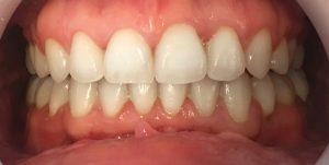 aparat dentar ceramic - inghesuire dentara 3