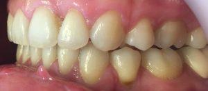 aparat dentar ceramic - inghesuire dentara 2