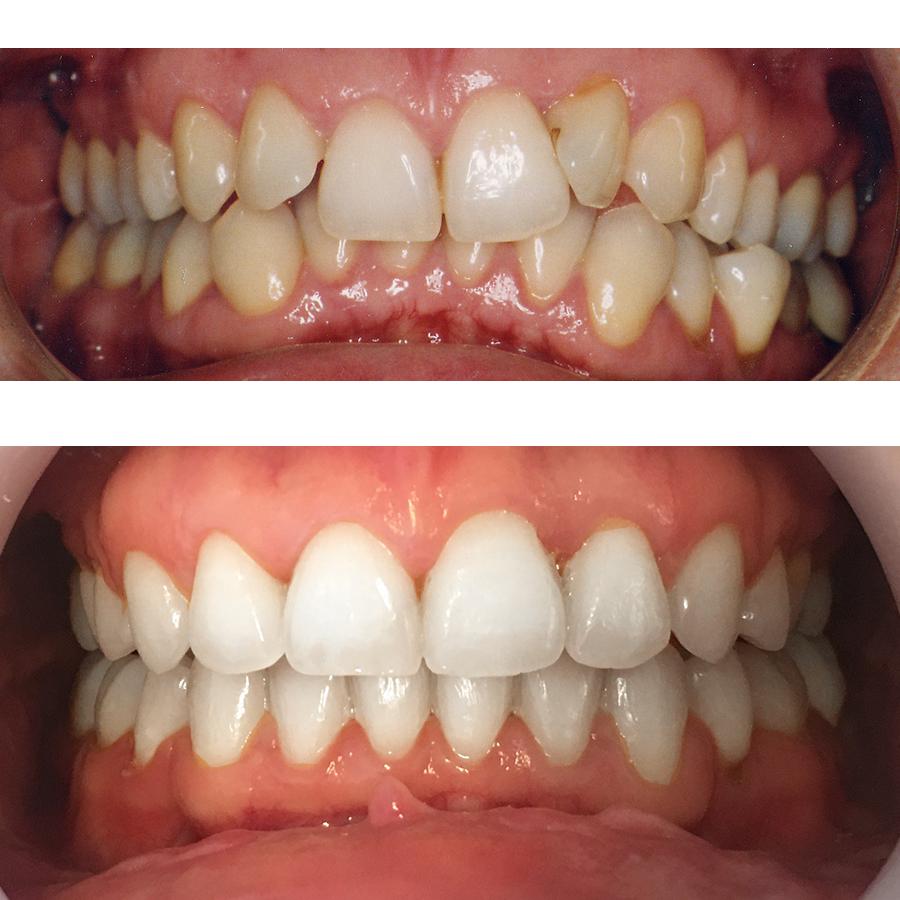 Inghesuire dentară tratată cu aparat dentar ceramic
