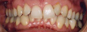 inghesuire dentara 3