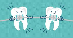 intrebari aparat dentar