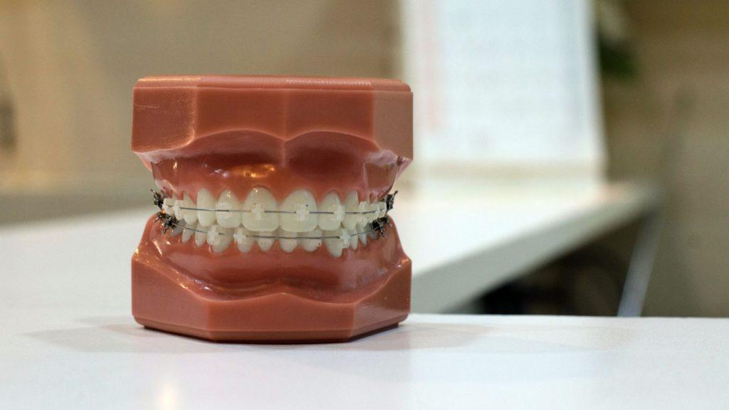 aparat-dentar-yingpis-kalayom